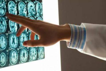 Ученые научились диагностировать аутизм с помощью МРТ мозга