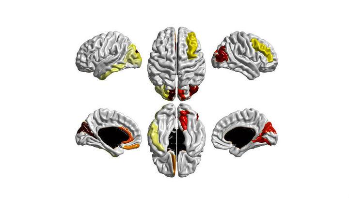 Цветные области указывают на участки коры мозга, которые росли значительно быстрее у младенцев, которым был позднее поставлен диагноз аутизм. Фото Nature