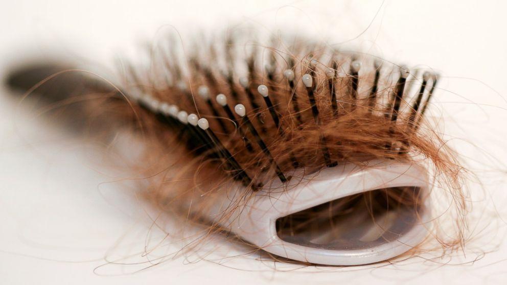 Волосы выпадут очень скоро. Фото: abcnews.go.com